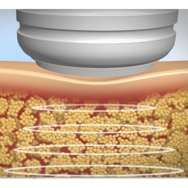 Cavitación corporal con Ultrasonidos